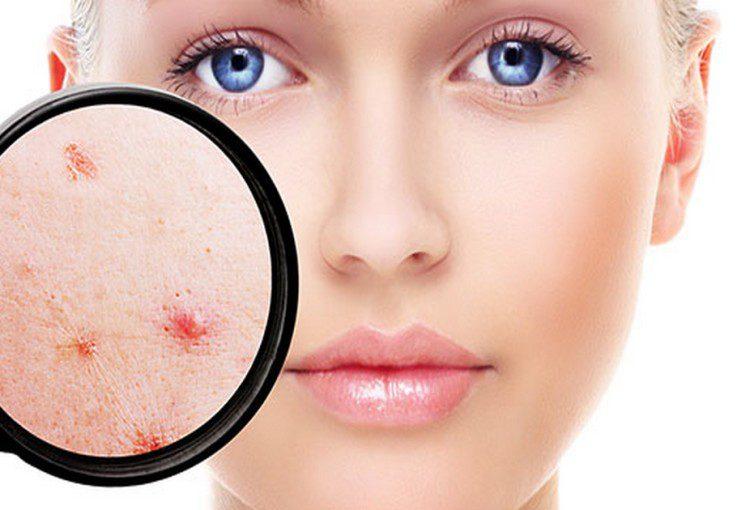 pcos_leczenie objawów androgenizacji